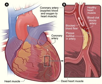 What Is Heart Disease Iq Solutions
